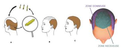 Greffe de cheveux - De la zone donneuse à la zone receveuse